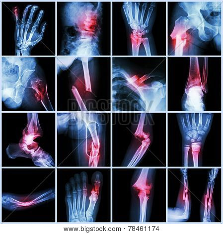 Collection X-ray Multiple Bone Fracture