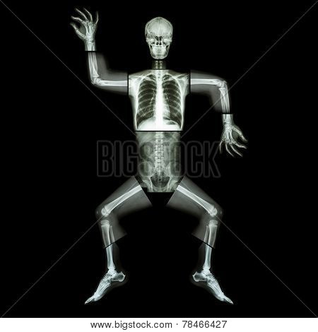 Aerobic Dance(human Bone Is Dancing)