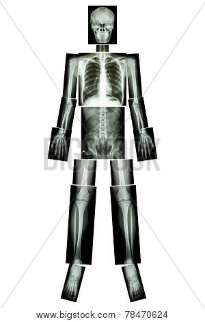 Anatomical Position. ( X-ray Whole Body )