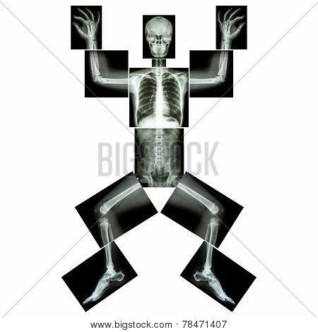 Jigsaw Human X-ray