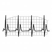 foto of sinus  - ECG complex - JPG