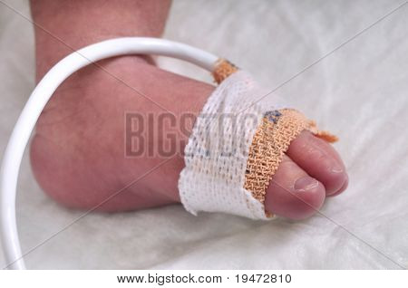 Close up of the foot of a premature baby boy - a series of BABY INTENSIVE CARE related pictures.