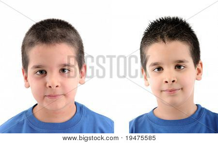 Before & After - close up image a little boy Ã??Ã??s face suffering severe urticaria - a series of URTICARIA images.