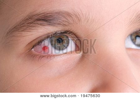 High resolution macro photo of an infected eye of a child.