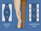 Medical Compression Stockings For The Treatment Of Varicose Veins. Medical Hosiery. poster
