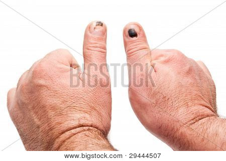 Thumbs With Injury
