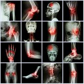 picture of joint inflammation  - Collection human joint and arthritis and stroke  - JPG