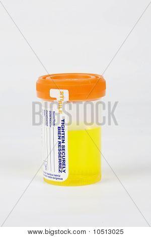 Unrine Sample In Sterile Container