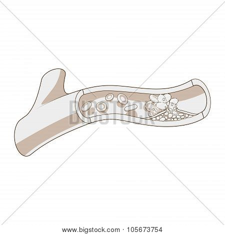 Blood vessel and clot thrombus vector illustration