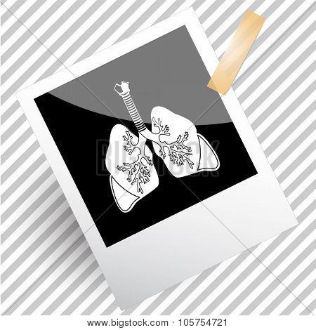 lungs. Photoframe. Vector icon.