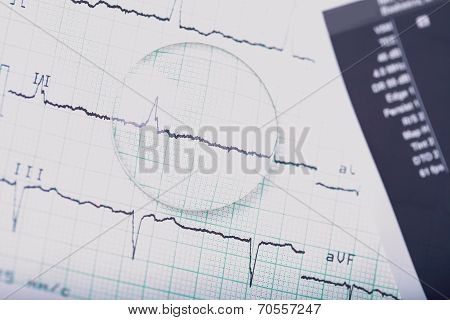 Medical Ecg And Lens