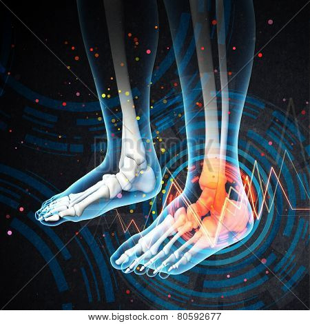 Human Foot Pain With The Anatomy Of A Skeleton Foot