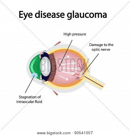 Glaucomatous eye. Violations causing glaucoma
