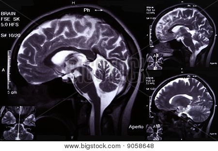 X-ray Image Of The Brain