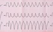 picture of cardiology  - Emergency Cardiology - JPG