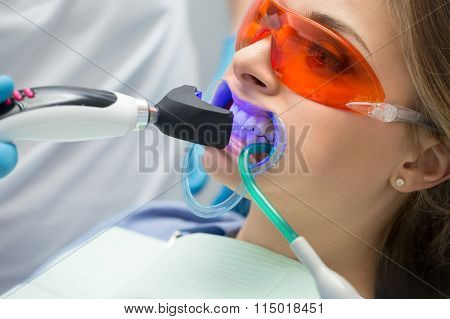 Tooth filling ultraviolet lamp