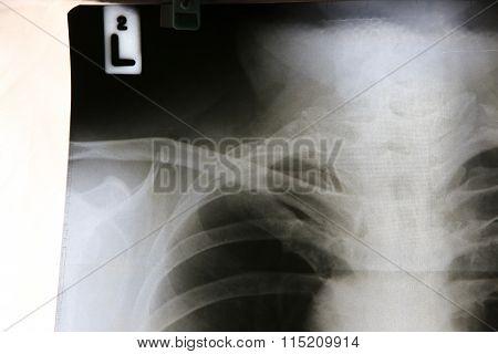 Film X-ray