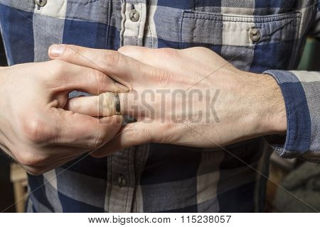 Remove Wedding Ring From His Finger