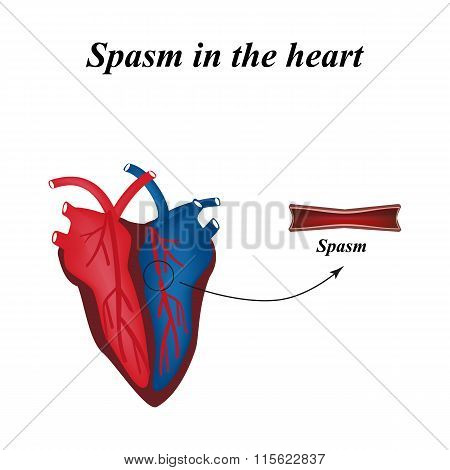 Spasm of the arteries of the heart. Infographics. Vector illustration
