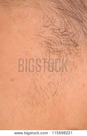 Close Up Of Human Skin