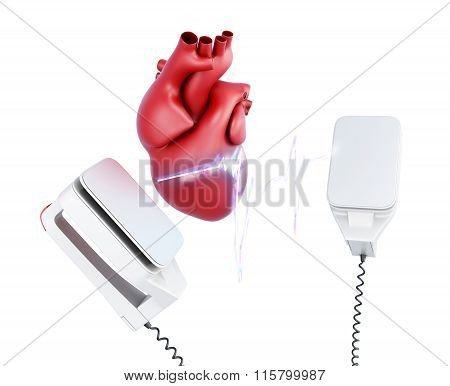 3d discharge of defibrillator and the heart.