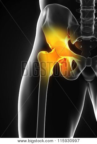 Painful Hip Joint