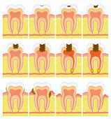 foto of gingivitis  - Some illustrations of an internal structure of tooth - JPG