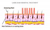 Laser Hair Removal Treatment. Procedure Causes Damage To The Hair Follicle Without Hurting The Skin  poster