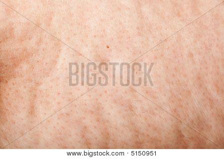 Cellulite Macro Background