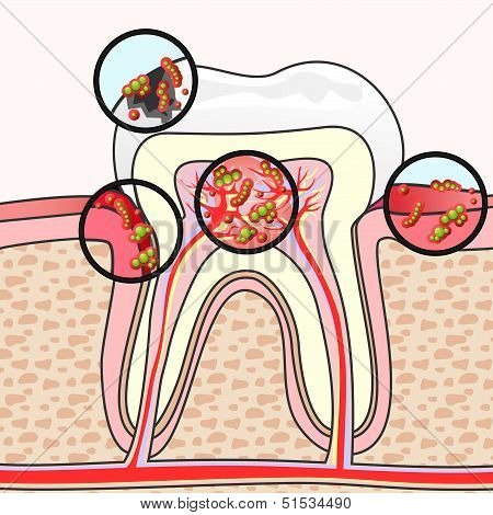 Dental Diseases