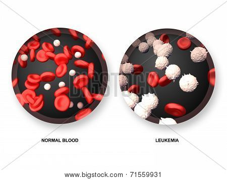Leukemia vs Normal Blood