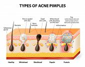 stock photo of pores  - Types of acne pimples - JPG