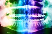 stock photo of human teeth  - Dental X - JPG