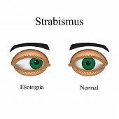 foto of squinting  - Diseases of the eye  - JPG