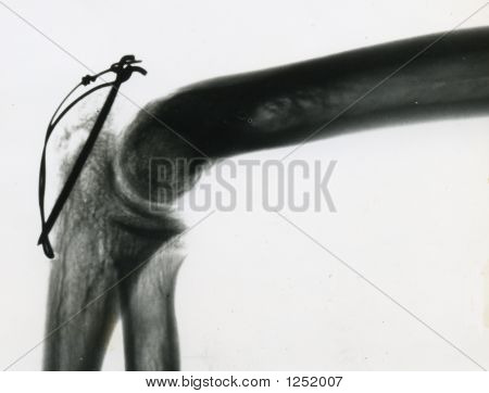 X Ray Of Elbow