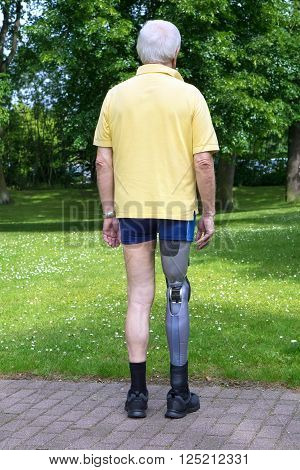 Rear View On Man With Prosthetic Leg