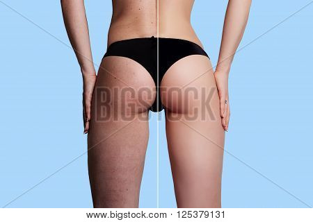 Concept skincare.The skin on the thighs of a young woman before and after cosmetic procedures.Cellulite treatment program for women weight loss. over background with copy space.
