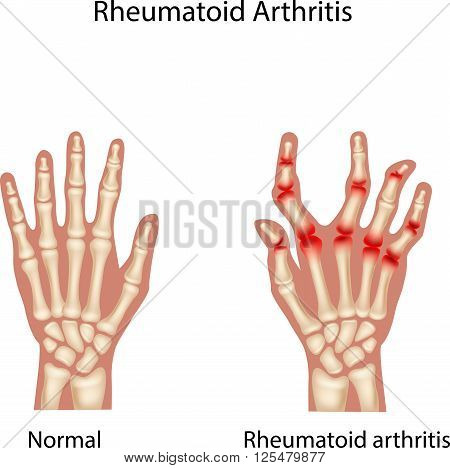 Vector illustration of Rheumatoid Arthitis on white background