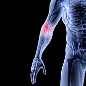 stock photo of joint inflammation  - Man - JPG