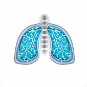 Symbol Lung Disease. Breathing. Respiratory System. Respiratory Disease - Cancer, Asthma, Tuberculos poster