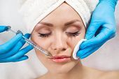 image of lip augmentation  - Young woman receiving a botox injection in her lips - JPG