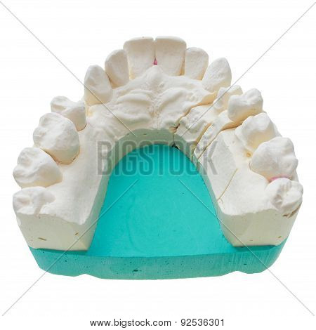 Positive Teeth Cast