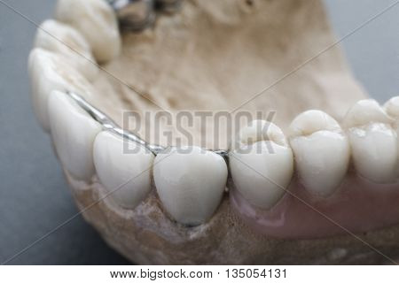 Dentistry Implantation Teeth Mouth Stomatology Denture Jaw Health Medicine Healthcare Concept