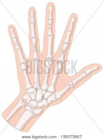 Close up diagram of hand fracture