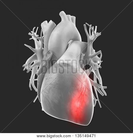3d rendered, medically accurate 3d illustration of the heart attack