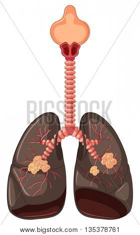 Diagram of lung cancer illustration