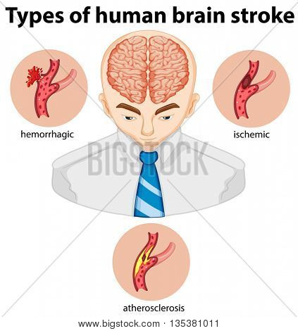 Types of human brian stroke illustration
