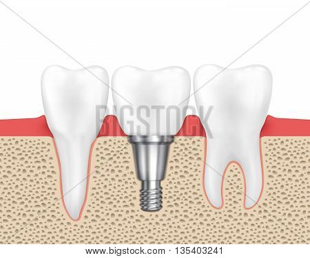 Dental human implant. Medical human dental, implant dental, dentistry implant tooth, dental inplant vector illustration