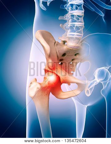 3d rendered, medically accurate 3d illustration of the painful hip