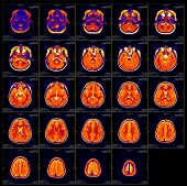 stock photo of mri  - Real brain MRI slide of a girl - JPG